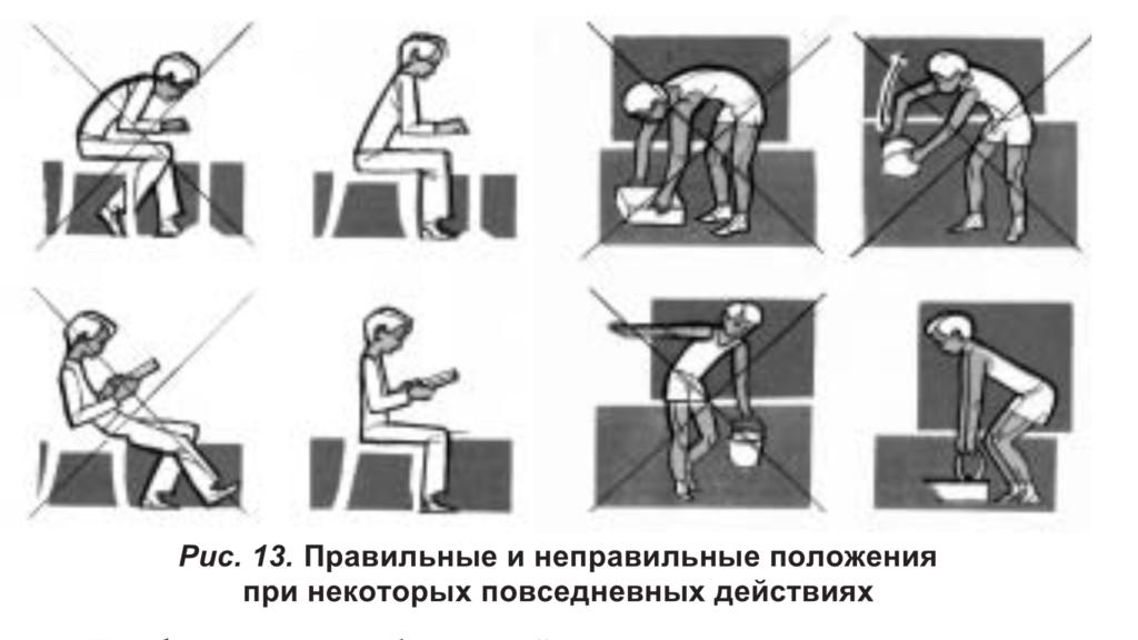 ЛФК при дефектах осанки