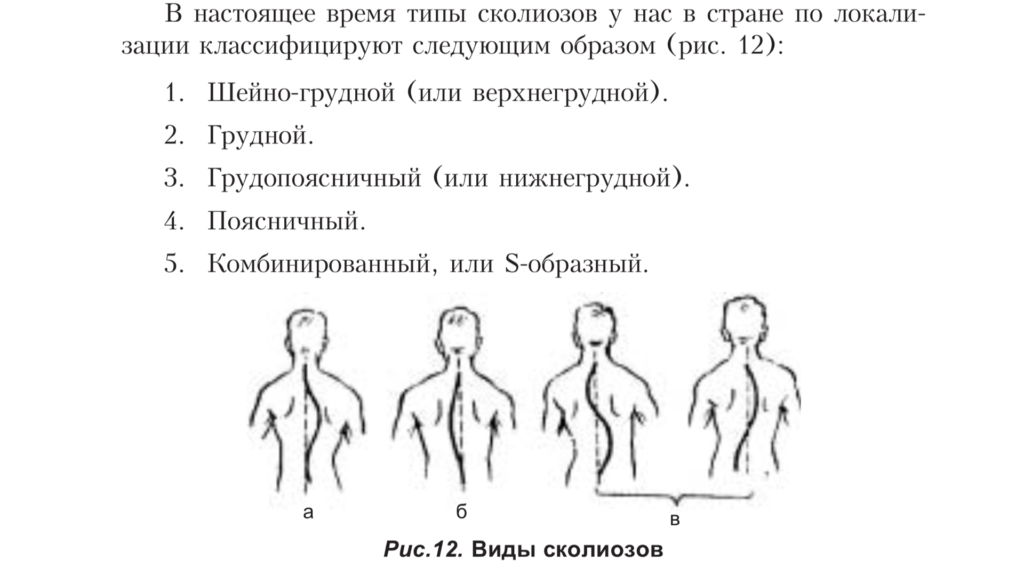 Лечебная физкультура при дефектах осанки - часть 2. Комплекс упражнений для укрепления мышечного корсета.