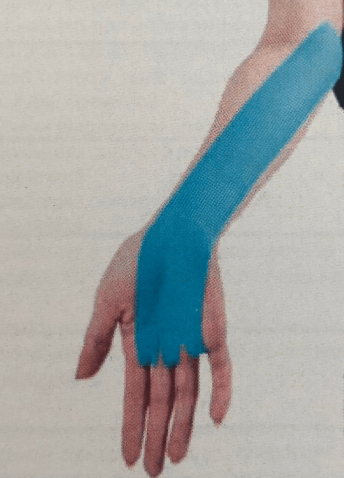 Кинезиотейпинг при синдроме запястного канала