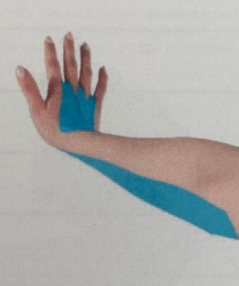 Тейпирование при синдроме запястного канала