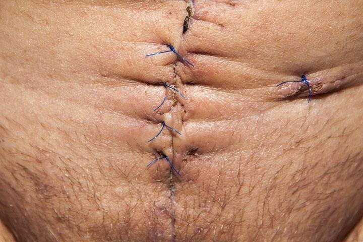 Реабилитация после операций на желудке