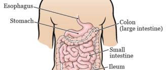 Реабилитация после операций на кишечнике