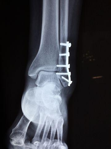 физиотерапия при переломах