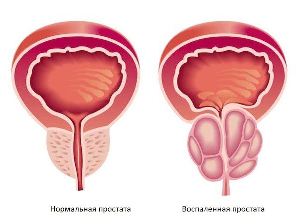 prostatit-2