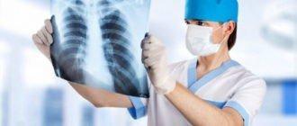 Физиотерапия при туберкулезе легких