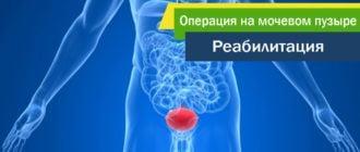 операция-на-мочевом-пузыре