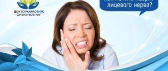 как-лечить-неврит-лицевого-нерва