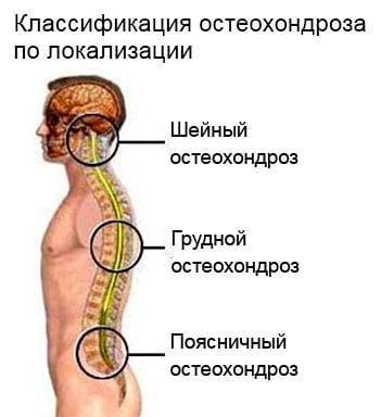 классификация-остеохондроза