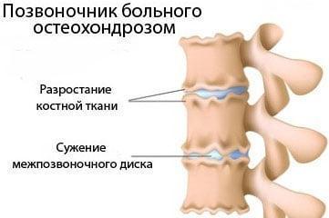 позвоночник-больного-остеохондрозом