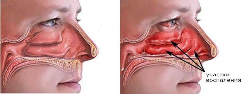 вазомоторный-ринит-воспаление